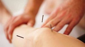 pain management with acupuncture, fertility treatment with acpuncture london naturopath