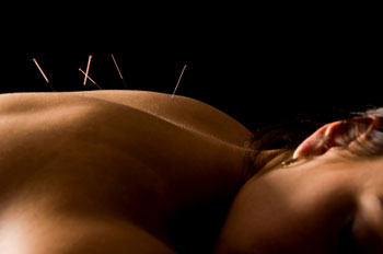london ontario acupuncture
